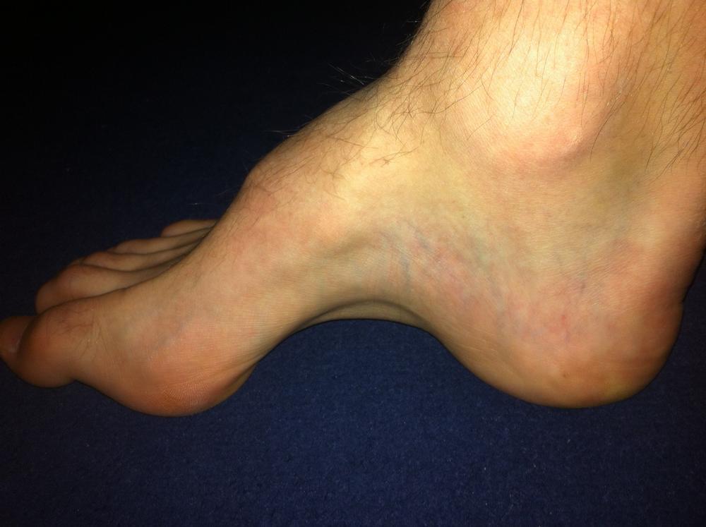 Picture of pez cavus deformity in the foot