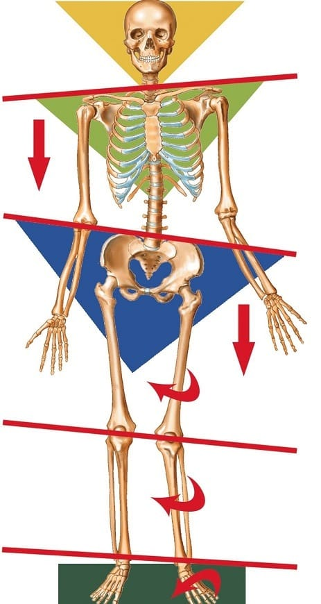 Diagram of potential imbalances in the skeletal system